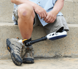 limb loss accidents