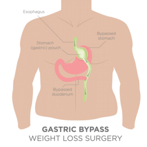 gastric bypass illustration