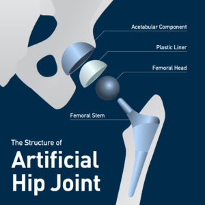 Artificial hip joint diagram