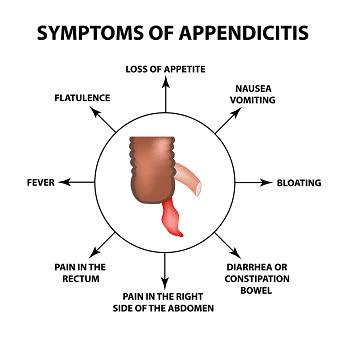 diagram of the symptoms of appendicitis